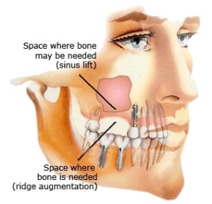 Osstem csontpótlás, implantálás